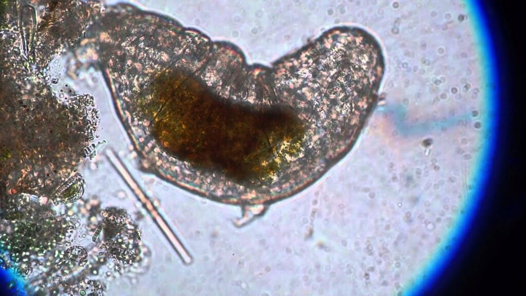 Tardigrades under a microscope